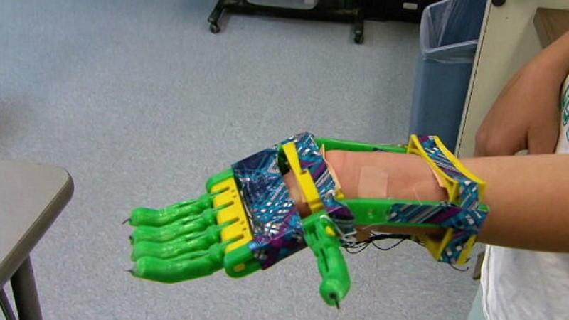 junge 12 bekommt hand prothese aus dem 3d drucker. Black Bedroom Furniture Sets. Home Design Ideas
