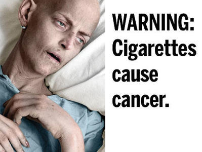Symptome und Therapie von Lungenkrebs - gesundheitde