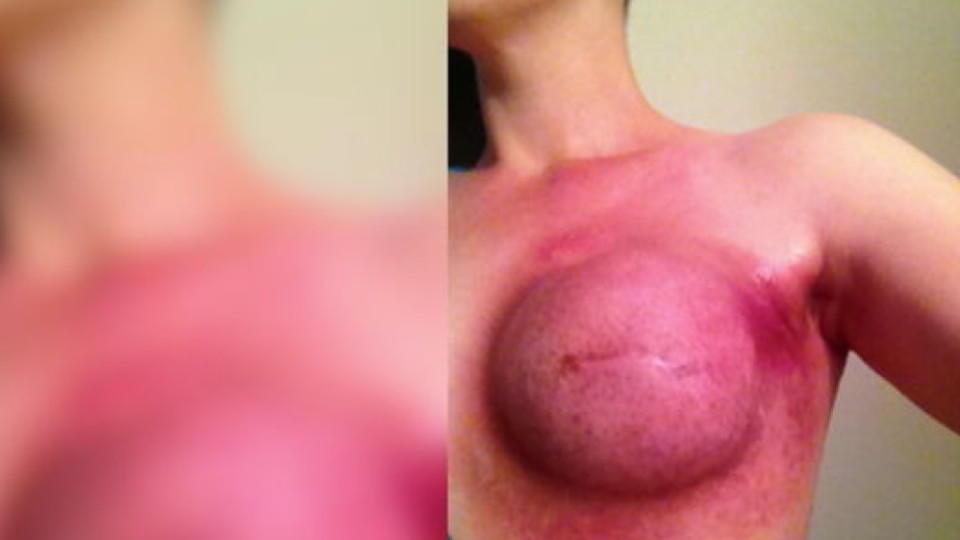 Der Plaststoff der Brust nowokusnezke