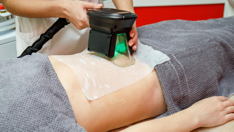 Cool Sculpting: So funktioniert die Eis-Methode