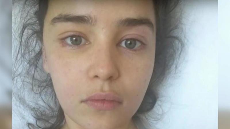 Wegen Extrem-Diäten: Sophie Turner hatte ein Jahr lang keine Periode mehr