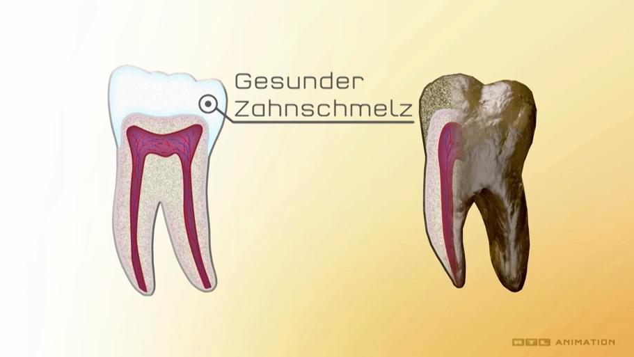 Ein gesunder Zahn im Gegensatz zu einem porösen Zahn.