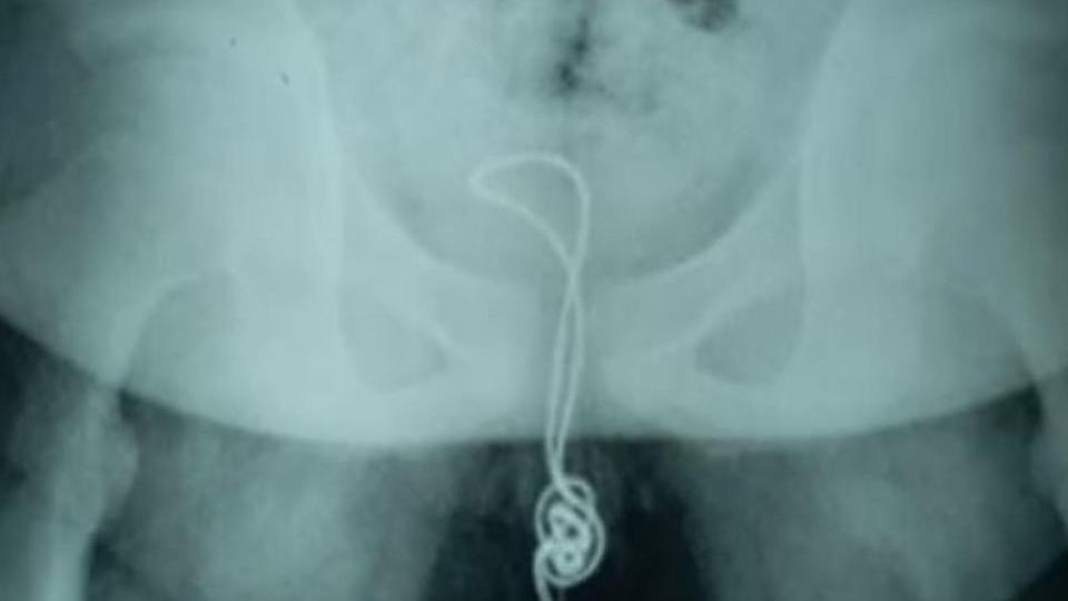 Das Röntgenbild zeigt, wie tief das Kabel im Penis des Jungen steckte.