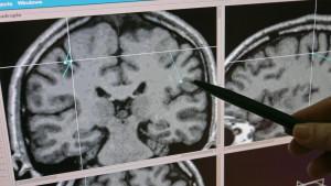 Häufig werden Aneurysmen bei Routine-Untersuchungen entdeckt