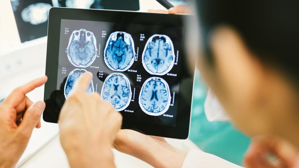 Ärzte schauen auf Hirn-Scans mit einem Hirntumor