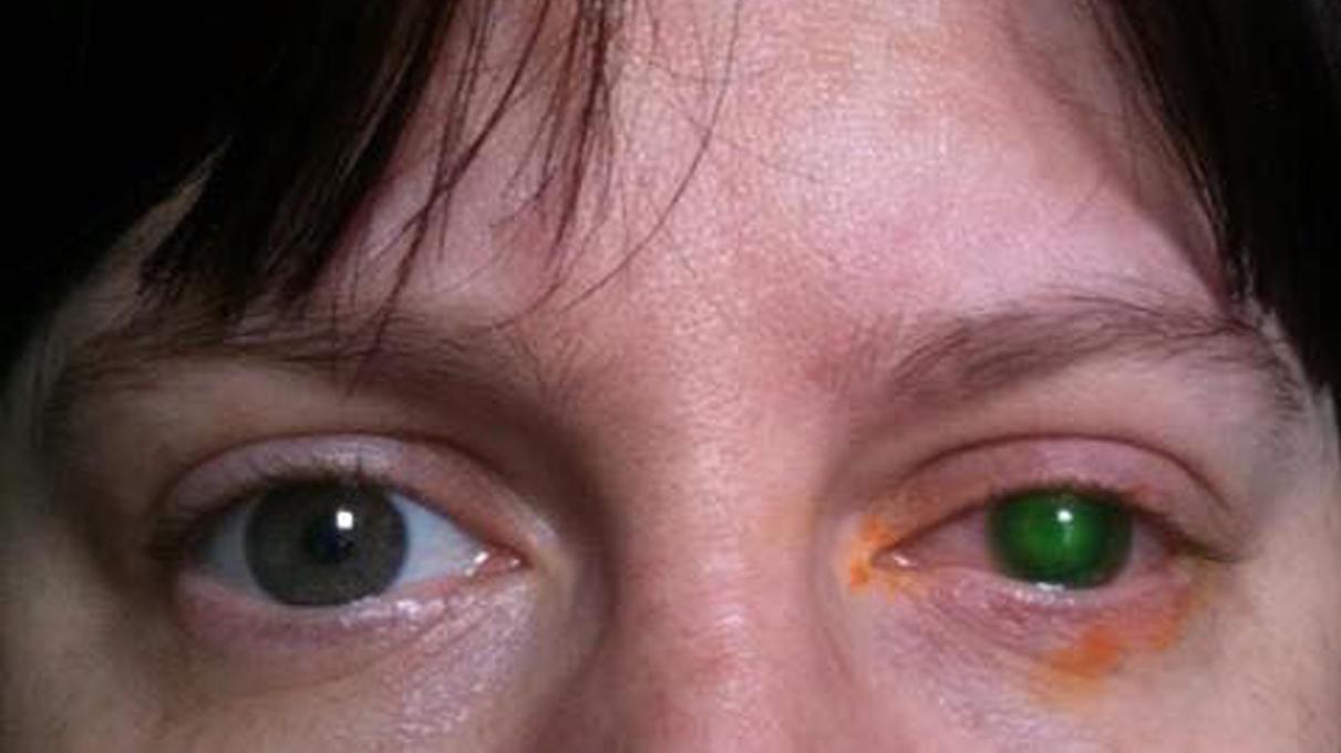 kann man mit kontaktlinsen schwimmen