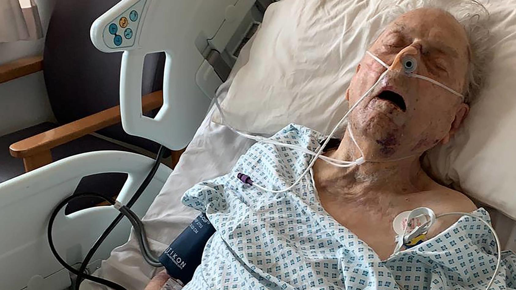 Der hilflose 98 Jahre alte Mann wurde in seinem Haus überfallen und brutal zusammengeschlagen.
