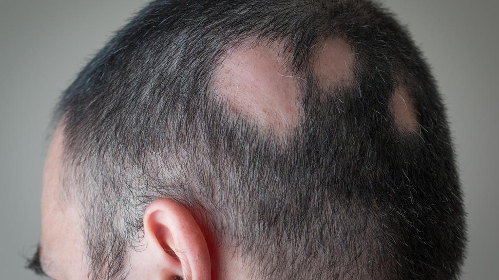 Mann mit kreisrundem Haarausfall.