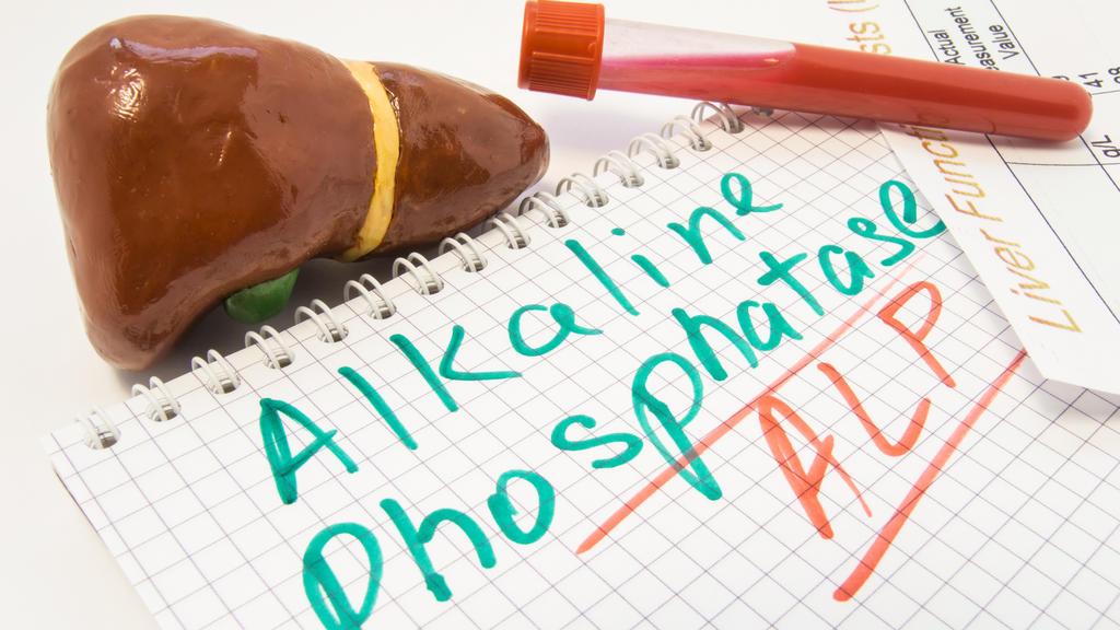 Leber Figur, Reagenzgläser mit Blut, Leber-Funktion-Testergebnis sind in der Nähe von Inschrift alkalische Phosphatase-ALP.