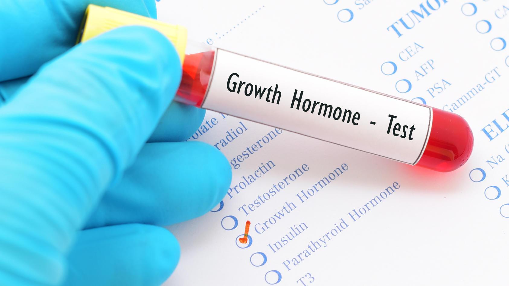 Die Akromegalie ist eine Erkrankung, bei der die Hirnanhangsdrüse (Hypophyse) große Mengen an Wachstumshormonen produziert und freisetzt.