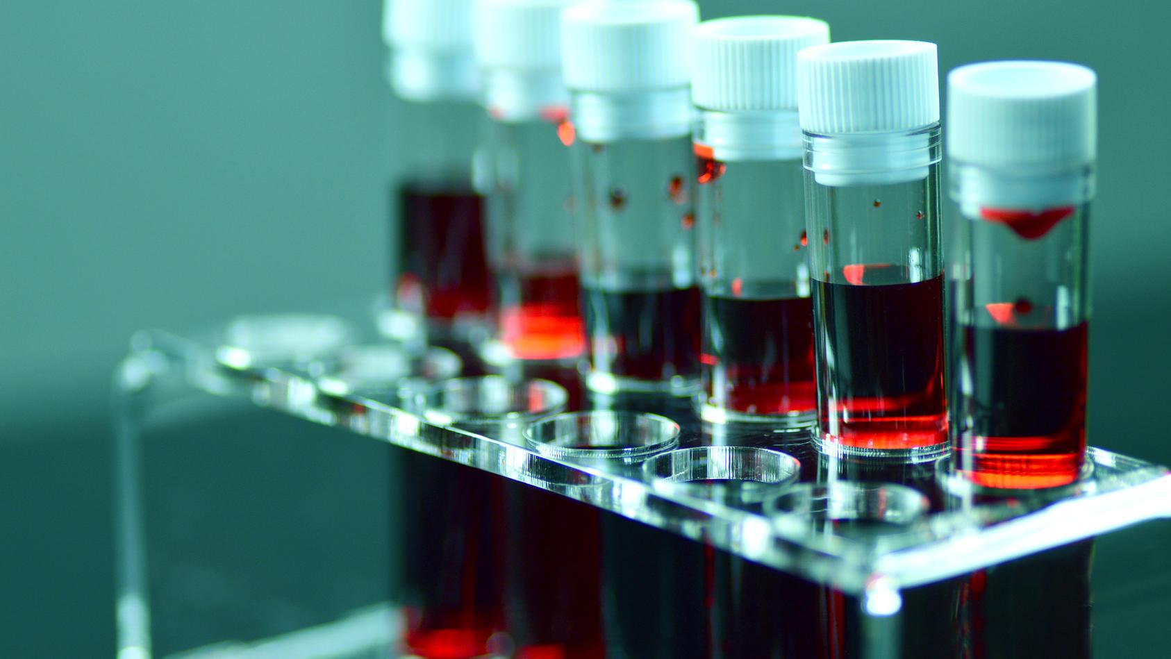 Die Gabe eines Medikamentes zur Hemmung der Blutgerinnung wird als Antikoagulation bezeichnet.