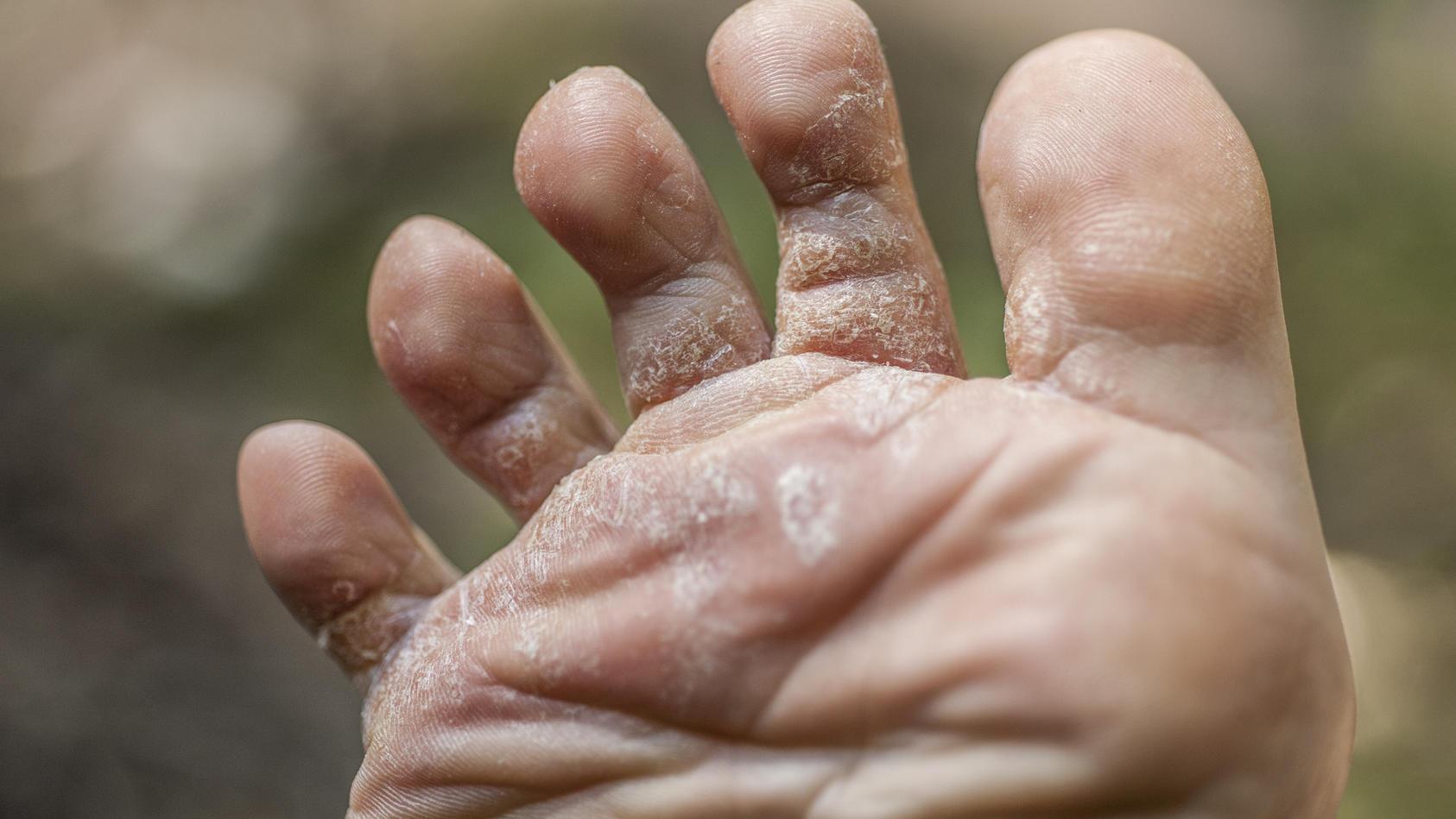 Eine Hautpilz-Infektion kann aber auch an anderen Stellen wie Händen oder am Rücken auftreten.