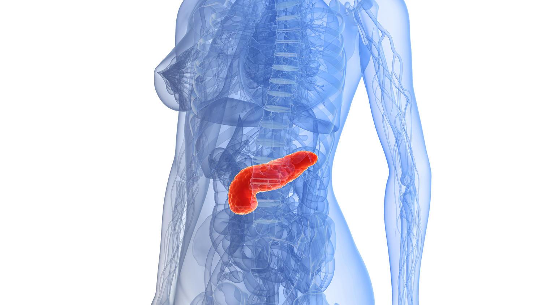 Bei einer akuten Bauchspeichendrüsenentzündung stauen meist Gallensteine den Pankreassaft, so dass die gestauten Enzyme das eigene Organ zerstören.