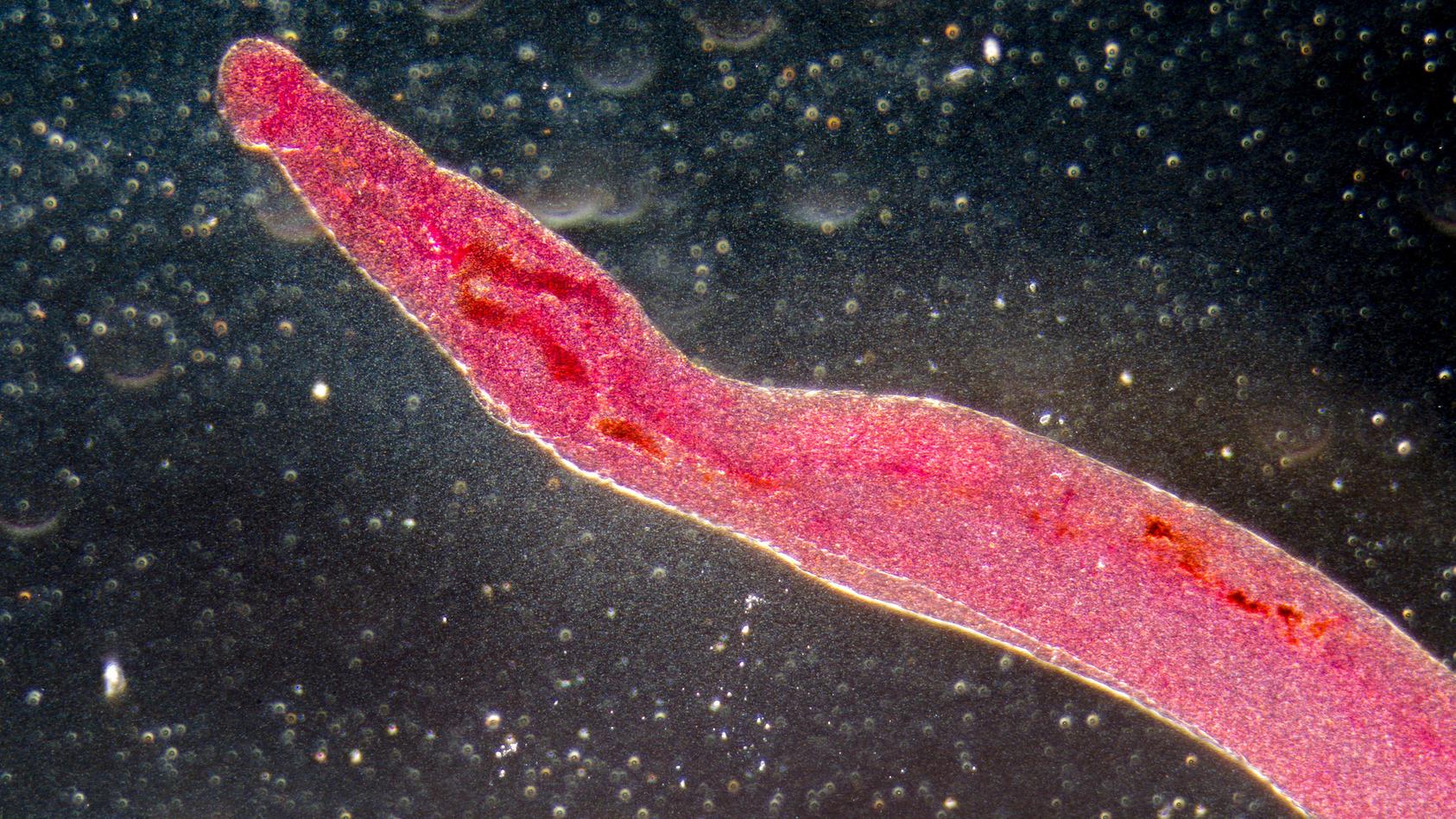 Reisende können sich in tropischen Gewässern mit Bilharziose infizieren. Dabei befallen Parasiten Darm und Harnwege.