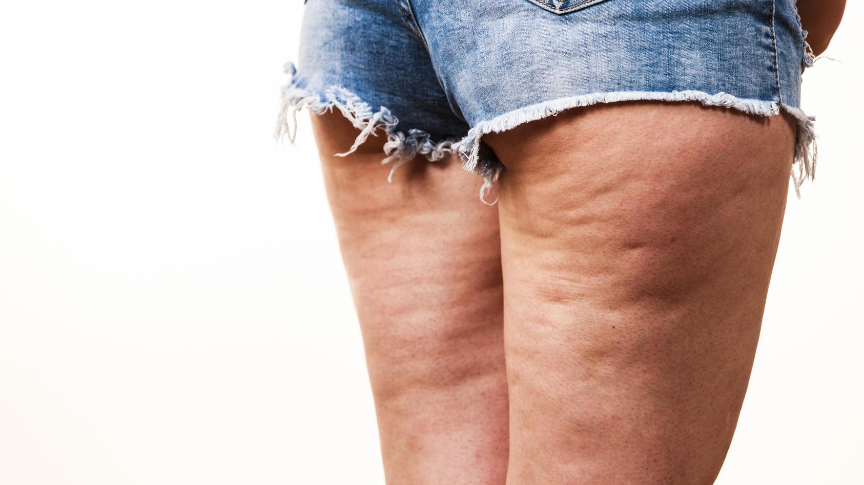 Schlaffe Haut, Cellulite und Dellen, die man am liebsten verstecken möchte: Eine Bindegewebsschwäche ist wohl jeder Frau unangenehm.
