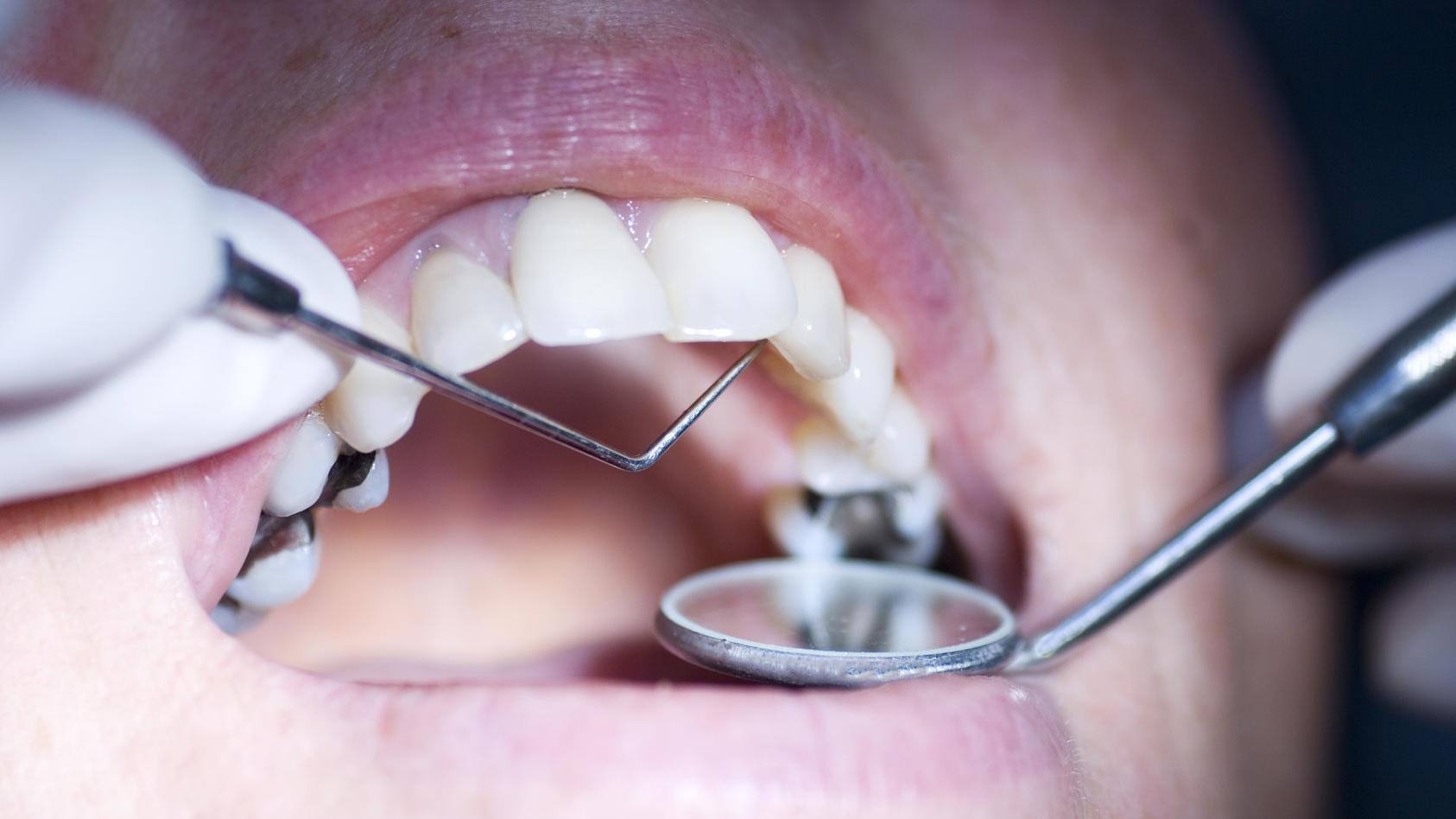 Chlorhexidin ist ein Antiseptikum, das vor allem in der Zahnmedizin verwendet wird