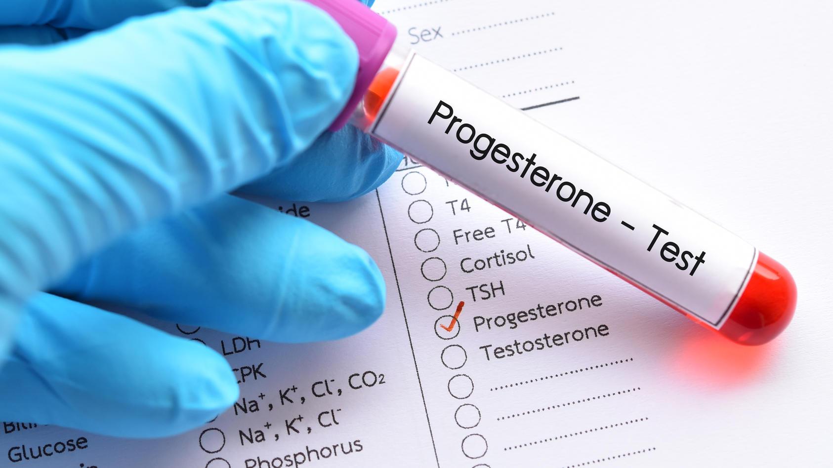 Bei einer Gelbkörperschwäche fehlt eines der wichtigsten Sexualhormone: das Progesteron