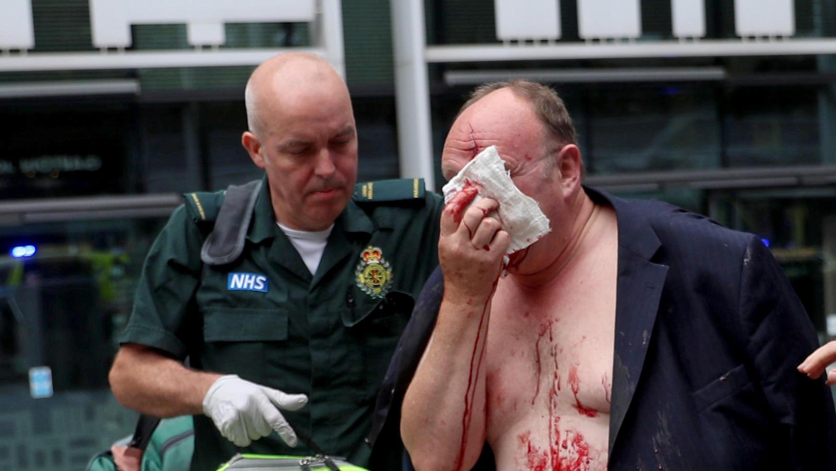 Der verletzte Mann wird von Sanitätern betreut.