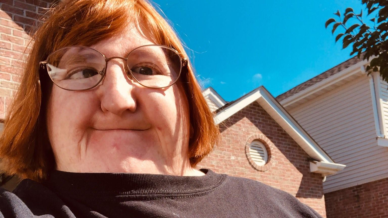 """US-Bloggerin Melissa Blake wehrt sich gegen Hater, die sie als """"zu hässlich für Selfies"""" beschimpfen."""