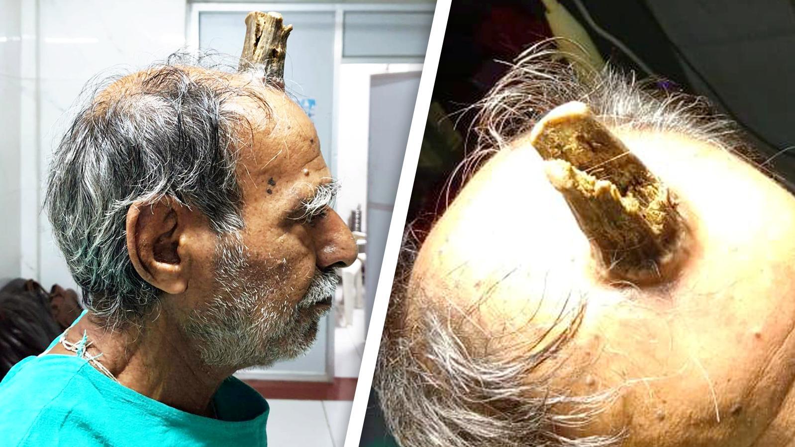 Das Horn auf dem Kopf des Mannes war etwa zehn Zentimeter lang.
