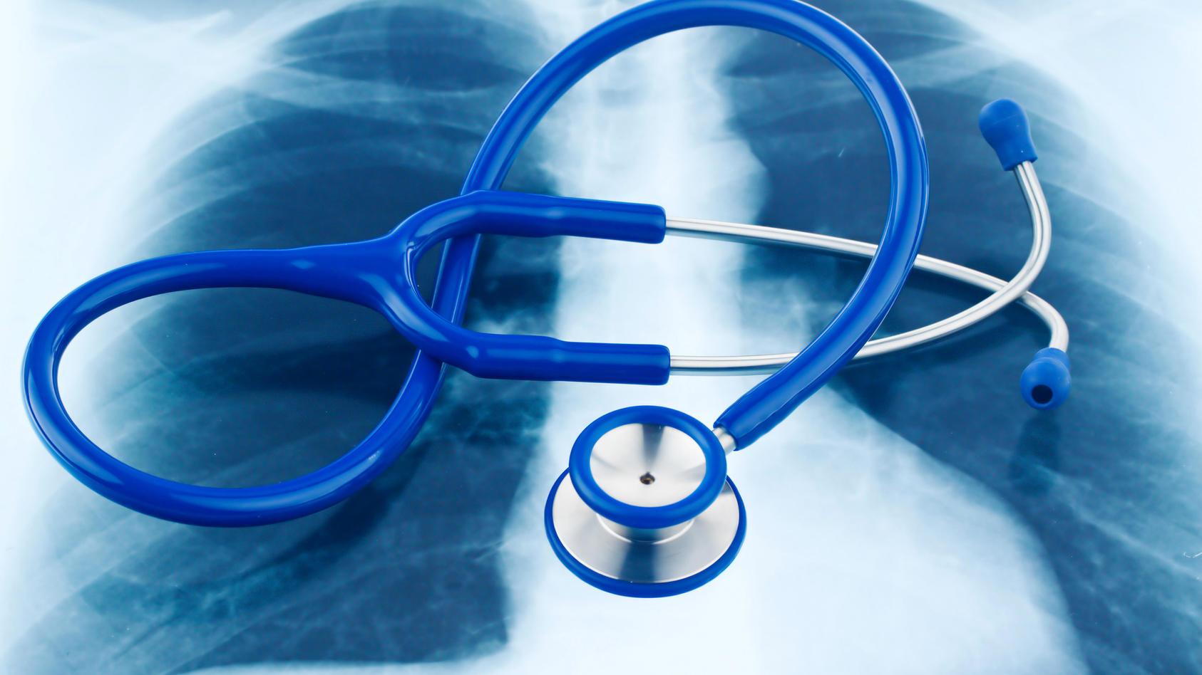 Stethoskop und ein Röntgenbild.