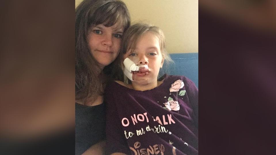 Kelly Parfitt und ihre verletzte Tochter Lily-Fay Parfitt