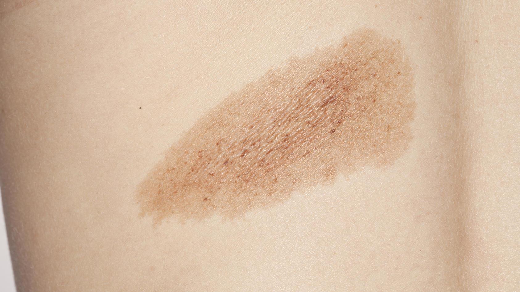 Hyperpigmentierung werden in erster Linie durch Schädigungen durch Sonneneinstrahlung hervorgerufen