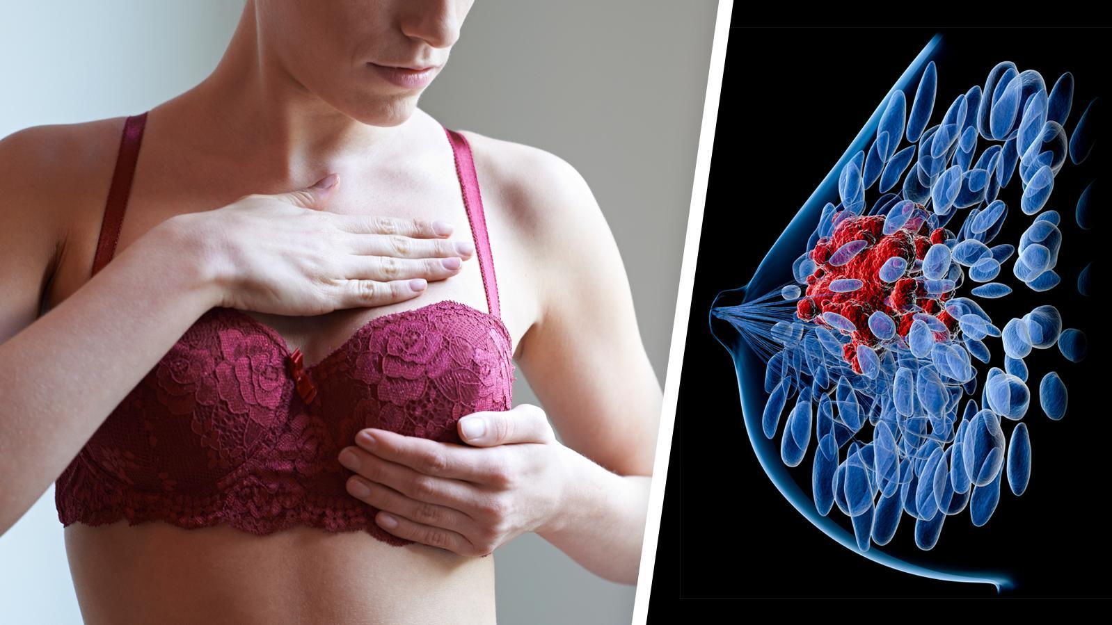 Sind Cholesterinsenker die neue Hoffnung im Kampf gegen Brustkrebs?