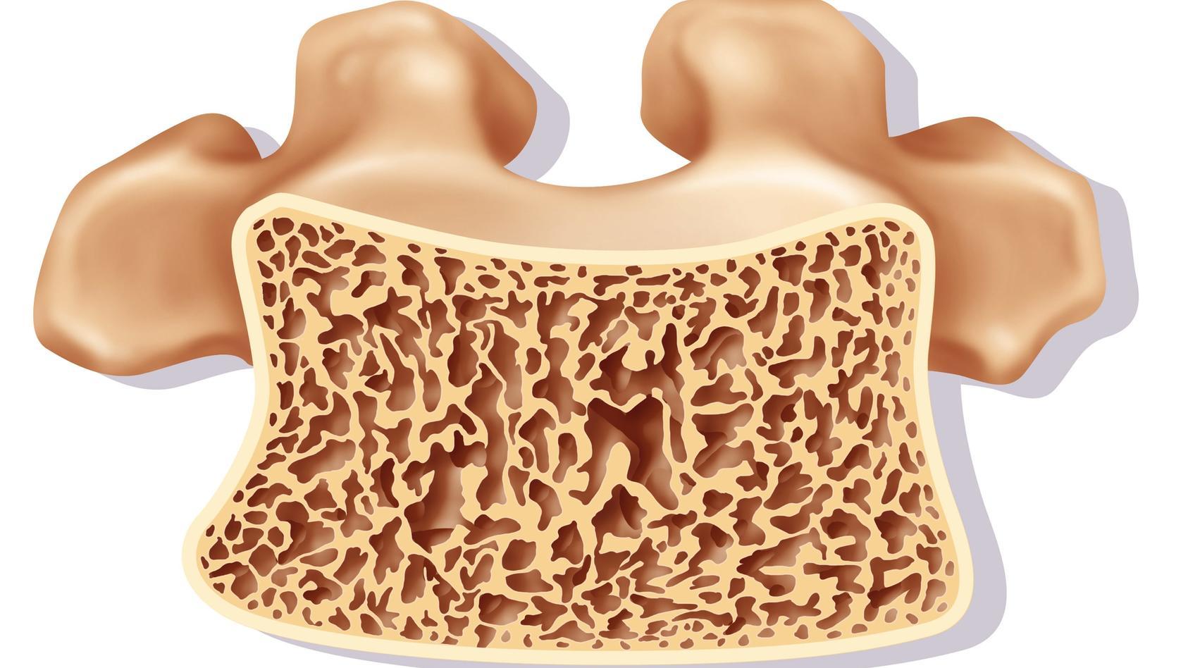 Die Osteopenie bezeichnet eine Minderung der Knochendichte.