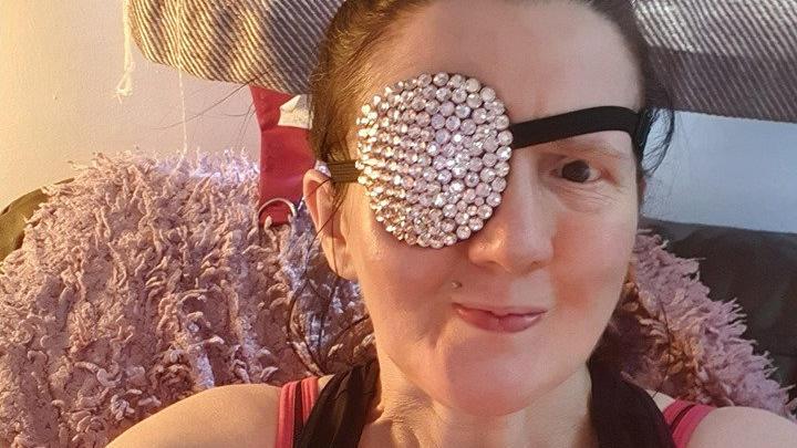 Nach der Amputation ihres Auges trägt Claire Willis eine Augenklappe.