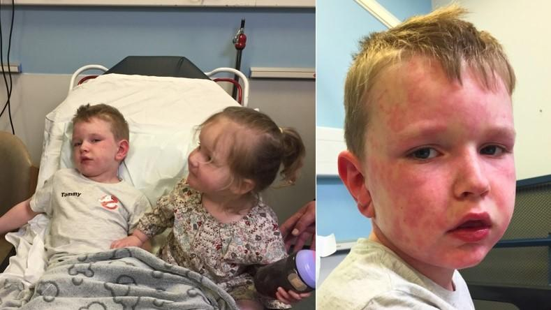 Der siebenjährige Tommy aus Großbritannien bekommt Atemnot und Hautausschlag, wenn er extremen Wetter ausgesetzt ist.