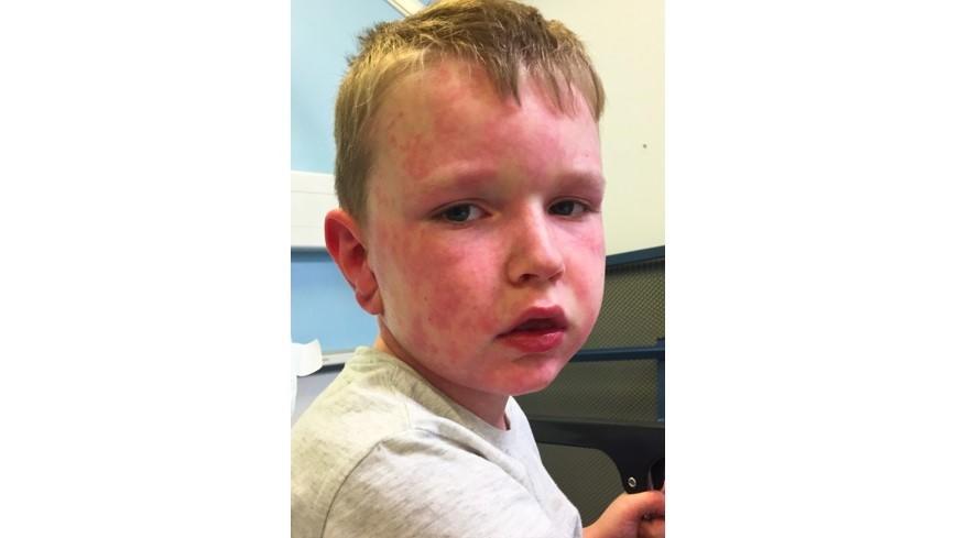 Ein Dermatologe diagnostizierte bei Tommy im Alter von 5 Jahren ein Kälte-Urtikaria und Angioödem.