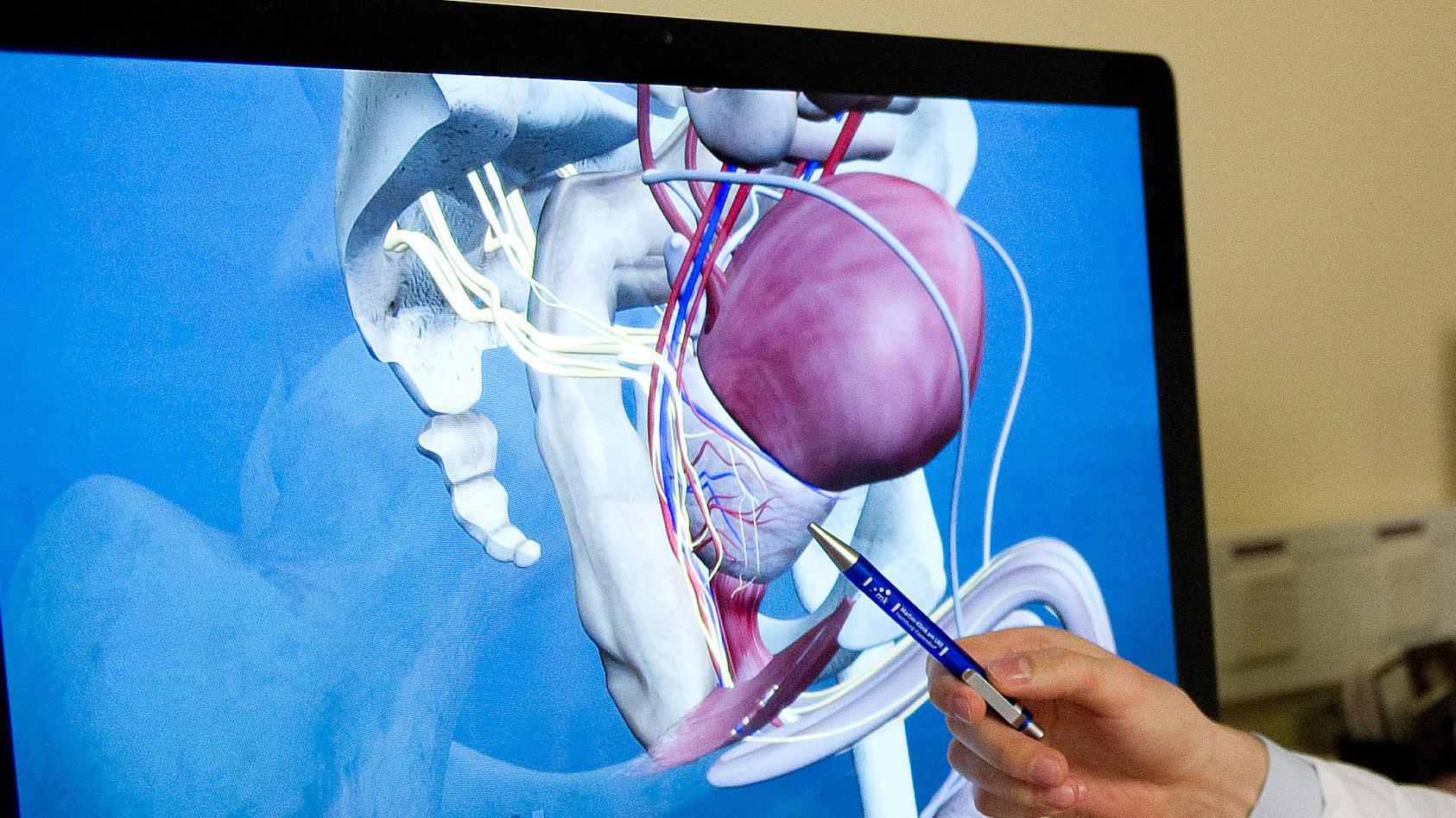 Eine Hand mit einem Stift zeigt auf ein 3D-Modell einer Prostata.