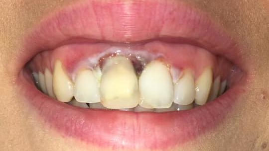 Aoifes Zahnfleisch: Verbrannt und leider alles andere als schön.