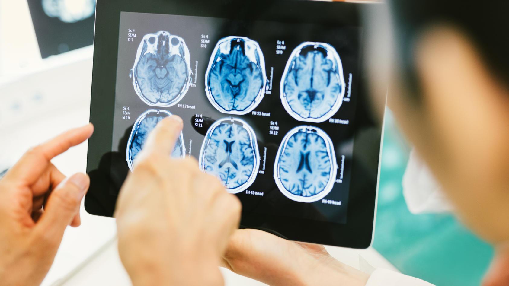 Ein Hirntumor ist eine sehr seltene Erkrankung, für die meistens keine Ursache gefunden wird.
