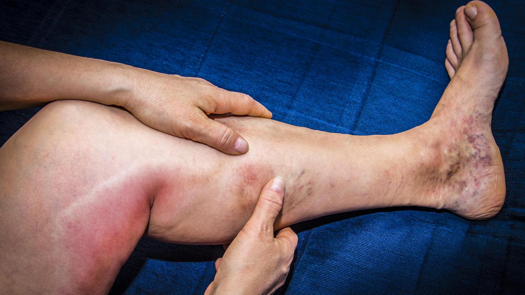 Eine Thrombophlebitis ist ein Blutgerinnsel im oberflächlichen Venensystem des Körpers – meist in den Beinen