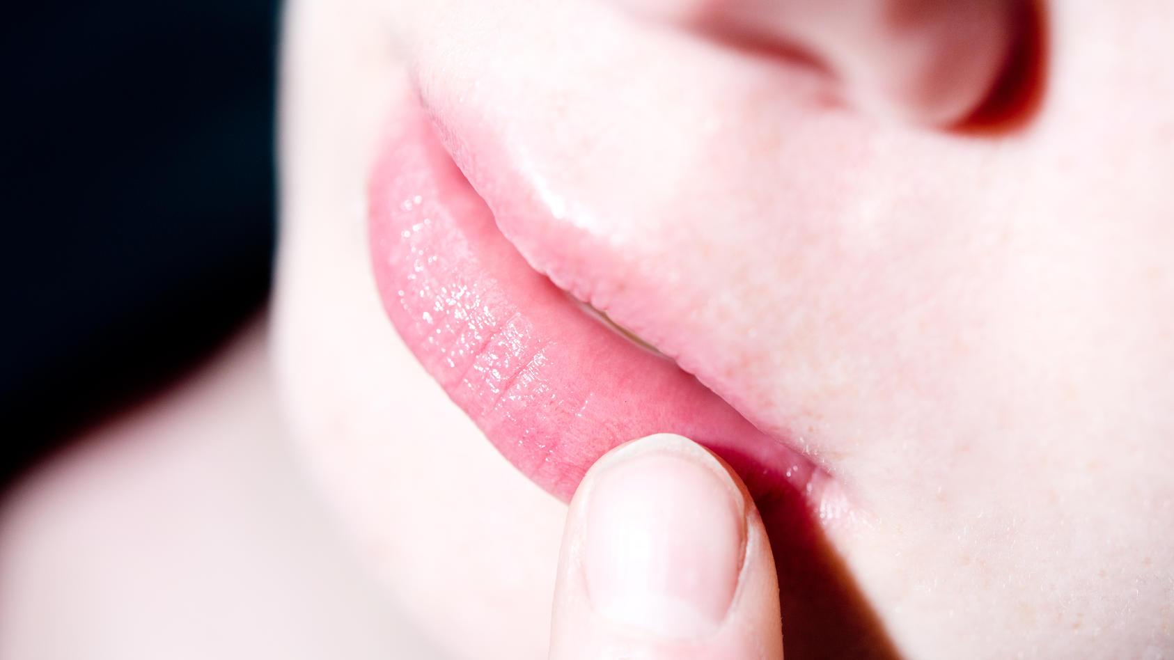 Eingerissene Mundwinkeln sind schmerzhaft und lästig.