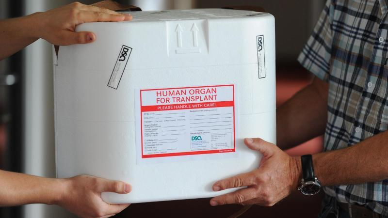 Eine Organtransportbox wird übergeben. Foto: Jens Kalaene/dpa-Zentralbild/dpa/Archivbild