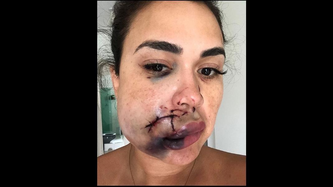 Ihre schweren Gesichtsverletzungen zeigt Milka Borges auf Instagram.