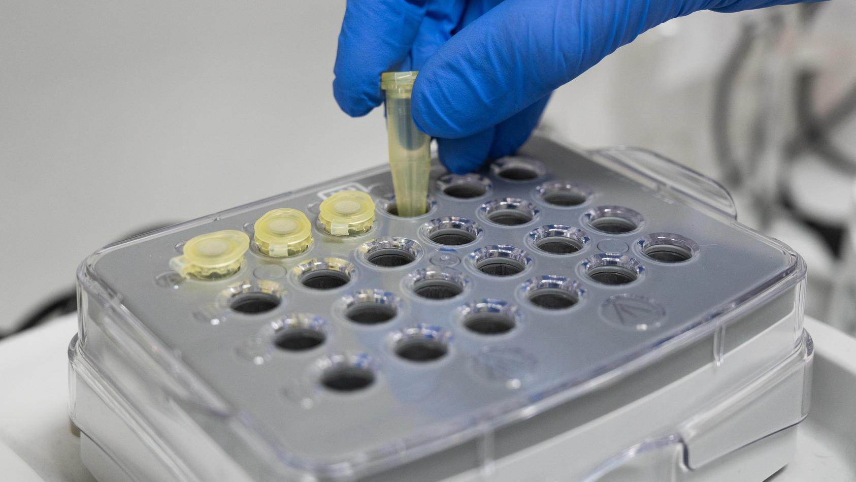 Untersuchungen zum Coronavirus in der Charite Berlin