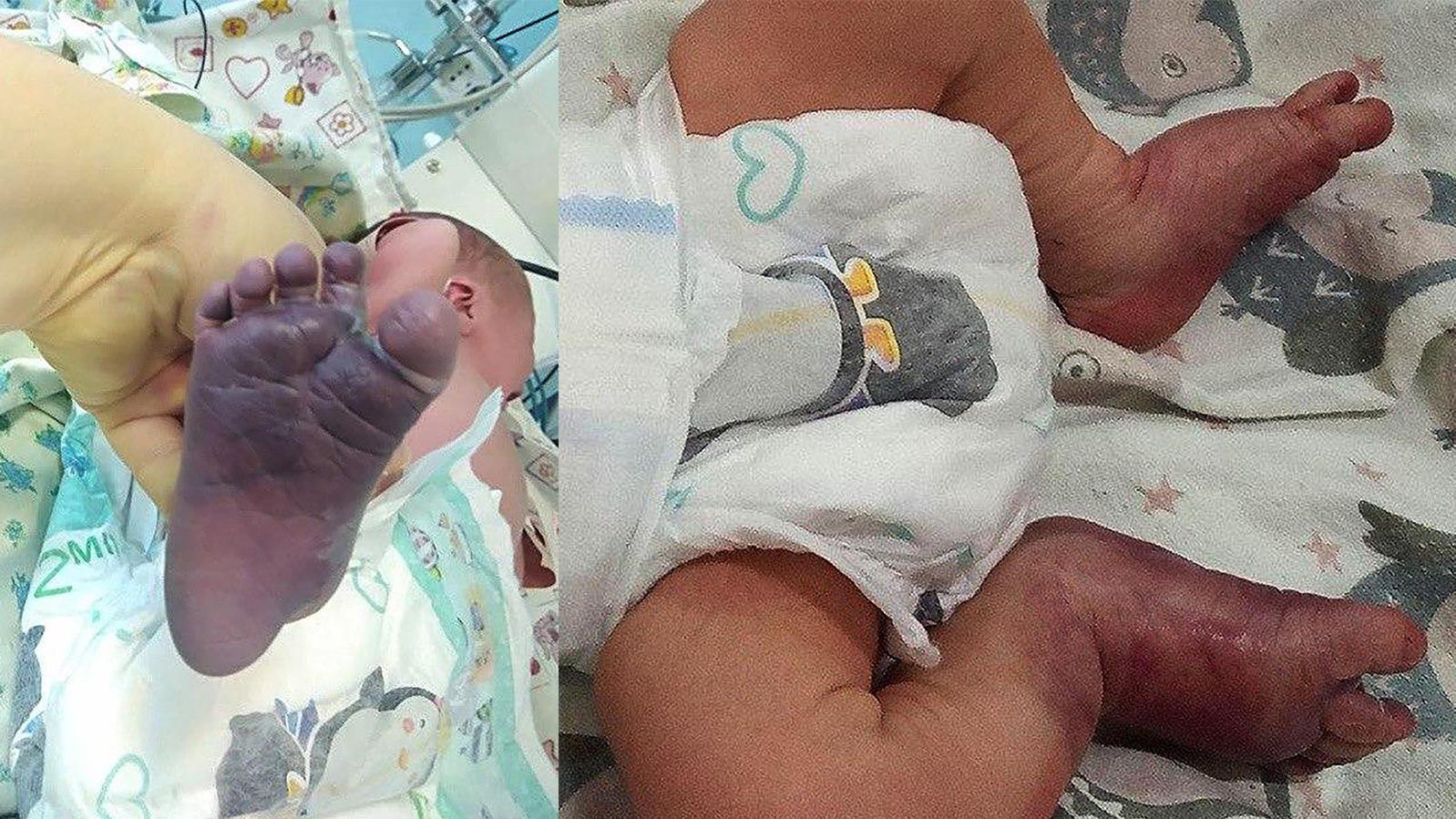 Russland: Diesem Baby wurden bei der Geburt beide Beine durch unqualifizierte Hebammen gebrochen.