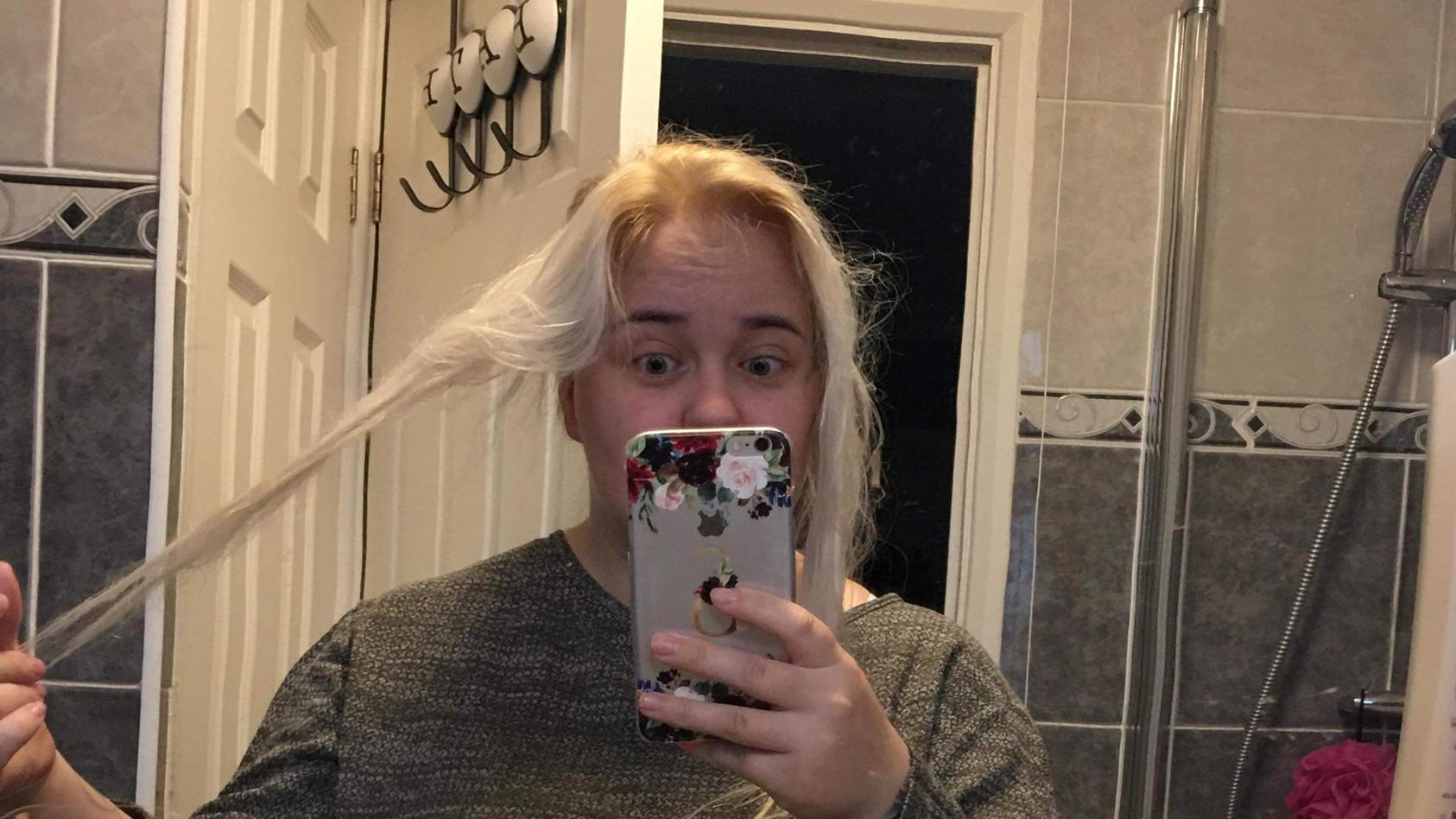 Shannon fielen nach der Benutzung eines Silbertoners die Haare aus.