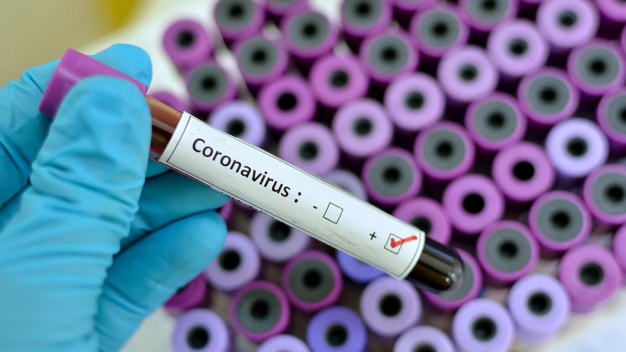 Gentech-Unternehmen Greffex Inc. meldet: Ja, wir haben einen Impfstoff gegen den Corona-Virus entwickelt!
