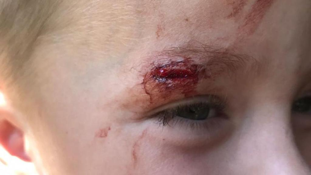 Auf Fotos, die auf Instagram hochgeladen wurden, hatte ein Kind eine gespaltene Augenbraue vom Rückstoß des Gewehrs.
