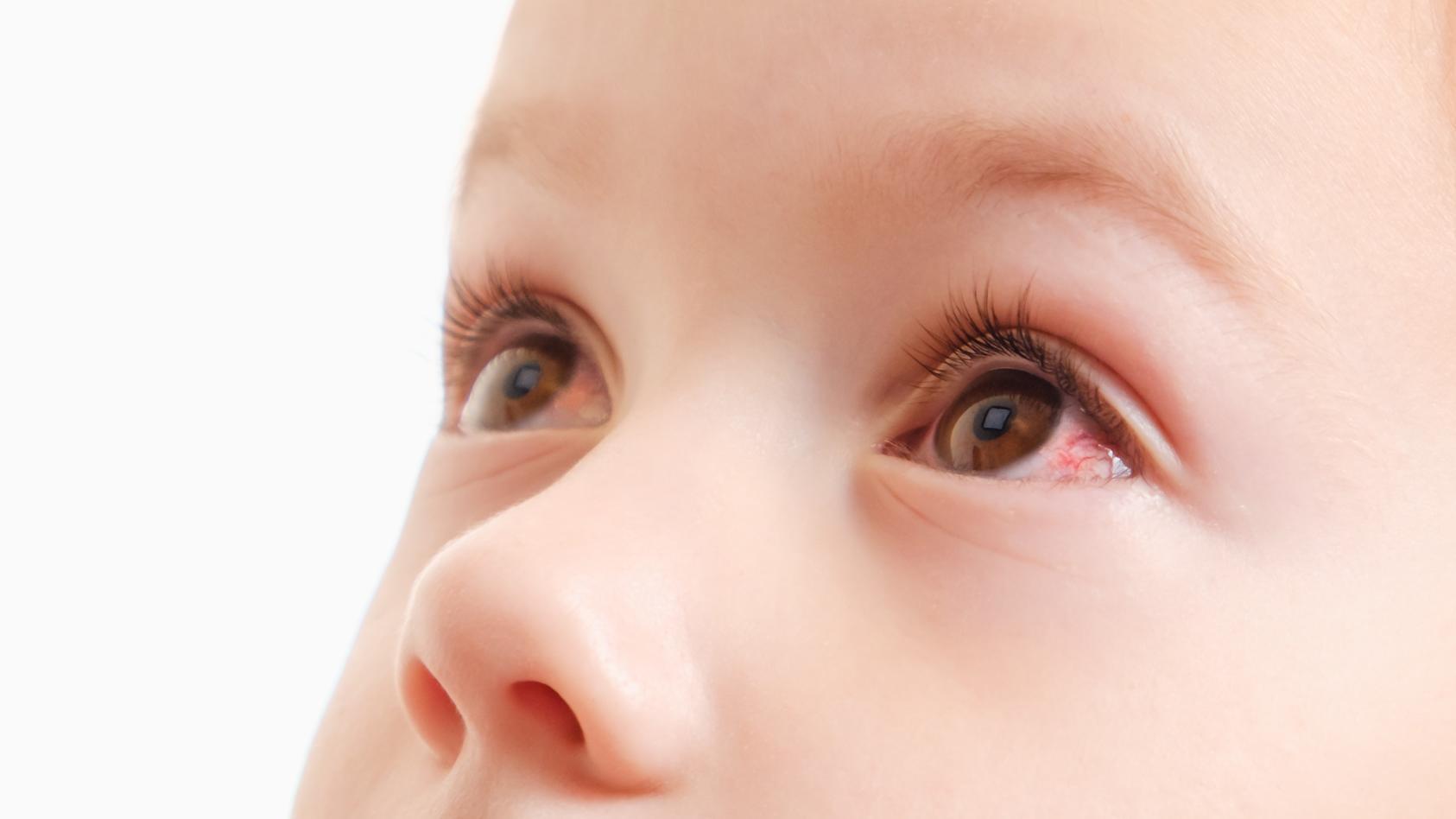 Ein Schmierauge entsteht bei Babys, wenn die Tränenflüssigkeit nicht richtig abfließen kann. Das verklebte Auge bildet sich meist zurück, manchmal kann jedoch eine weitere Behandlung erforderlich werden.