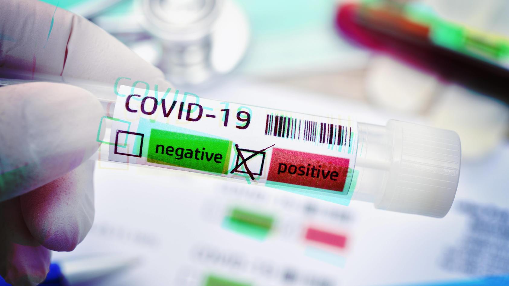 Wenn junge Menschen sich gezielt mit dem Coronavirus anstecken, könnte das eine unkontrollierte Ausbreitung verhindern.