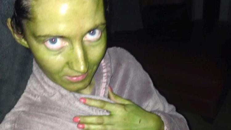 Jenni Coleman mit grüner Haut, nachdem sie abgelaufenen Selbstbräuner aufgetragen hat.