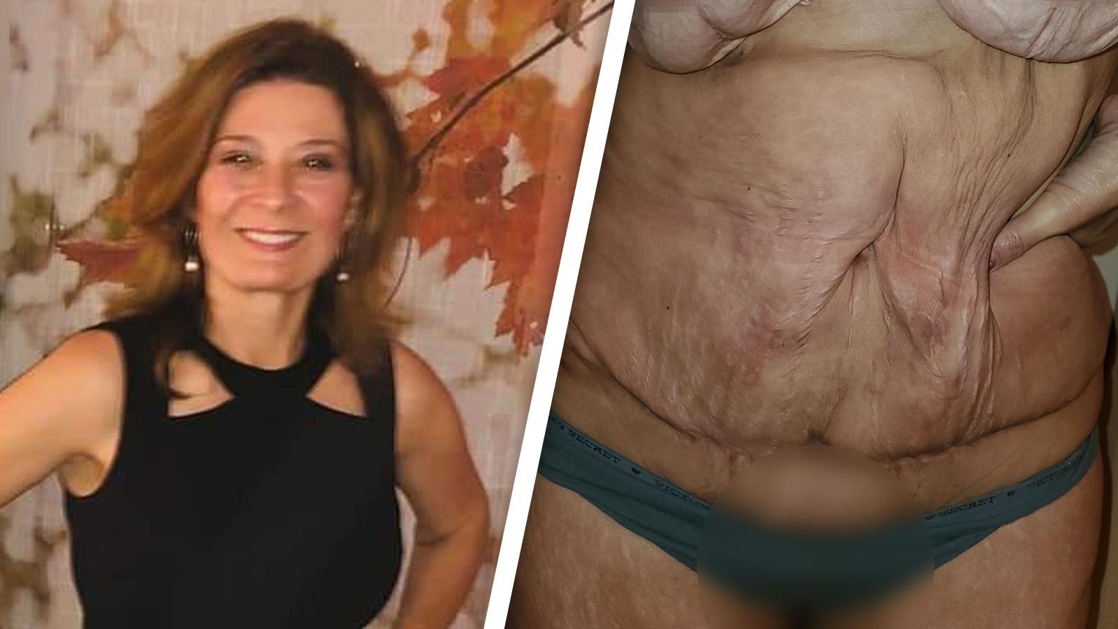 Katherines Bauch und Brüste hängen in Wülsten an ihrem Körper herunter.
