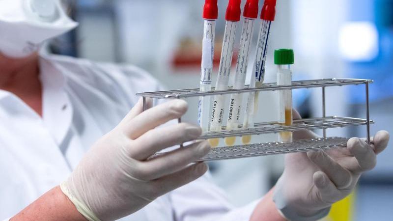 Eine Mitarbeiterin bereitet Proben von Menschen mit Covid-19 Verdacht für die weitere Analyse vor. Foto: Sven Hoppe/dpa/Symbolbild