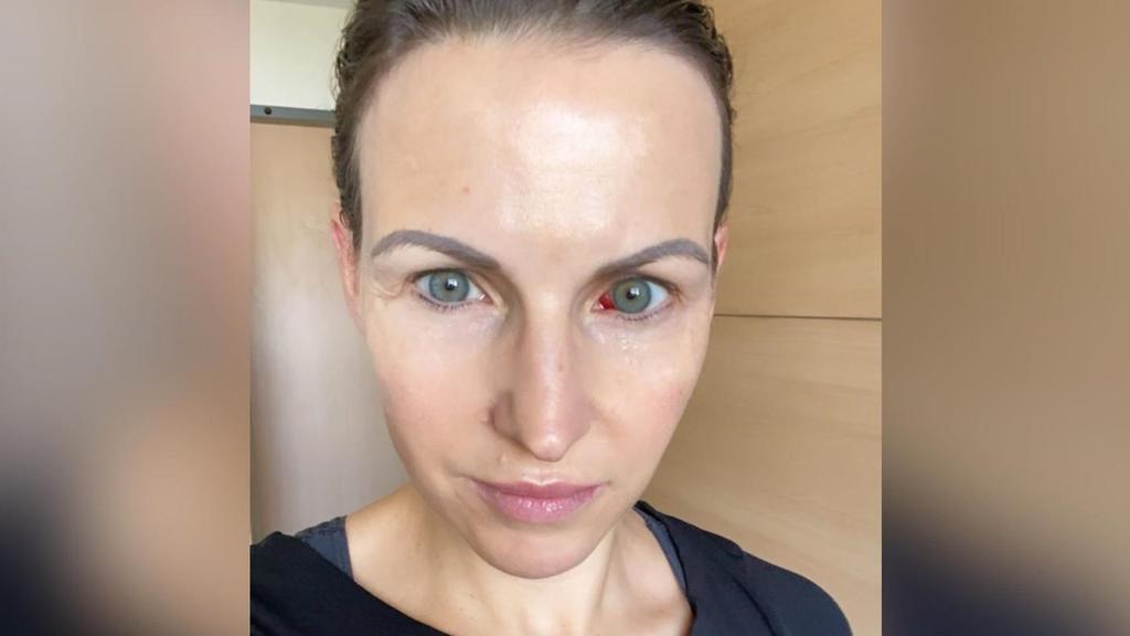 Sabrina Mockenhaupt postet ein Foto aus dem Krankenhaus, was sie mit einer Verletzung am Auge zeigt.